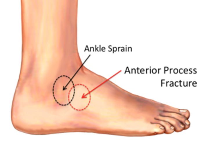 Where Do Sprains Usually Occur?