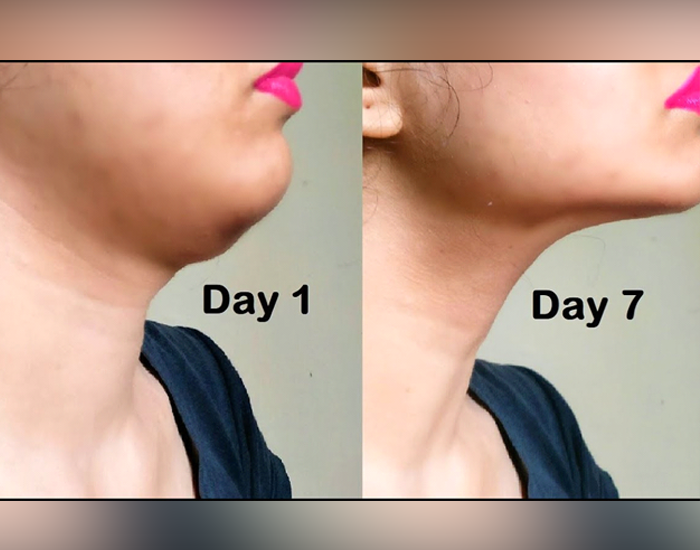 How-to-get-rid-of-Double-Chin