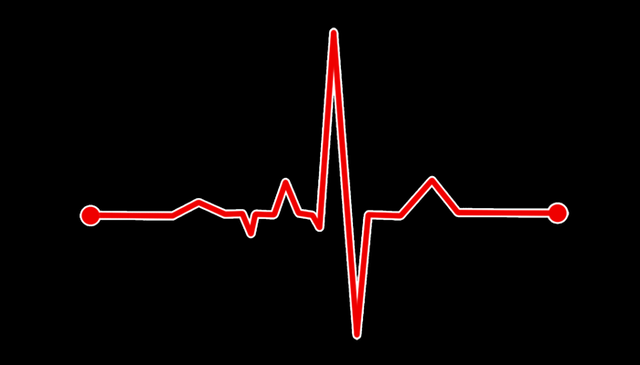 Altered Heart Rate