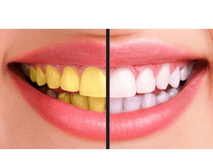 Banana shake can whitens your teeth