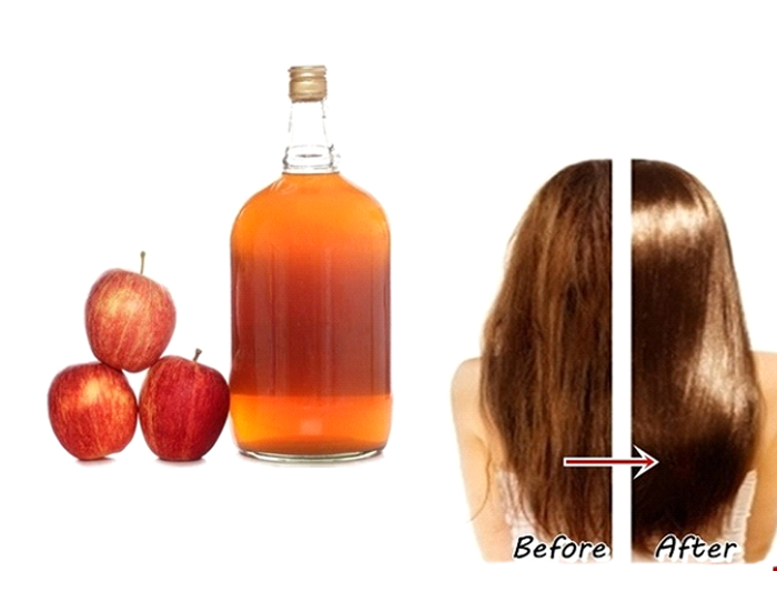 Can Apple Cider Vinegar help your hair develop