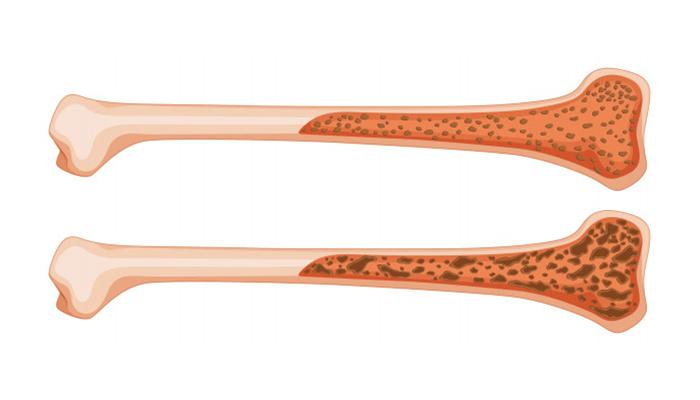 Improved Bone Health