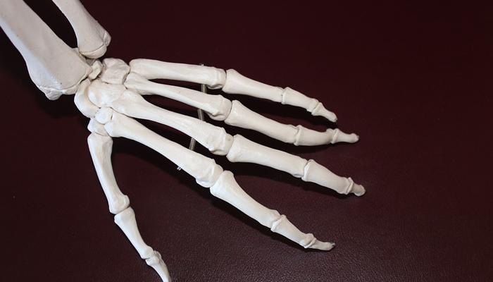 reduces the risk of arthritis